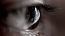 Aphakia | Látásjavítás műlencsével